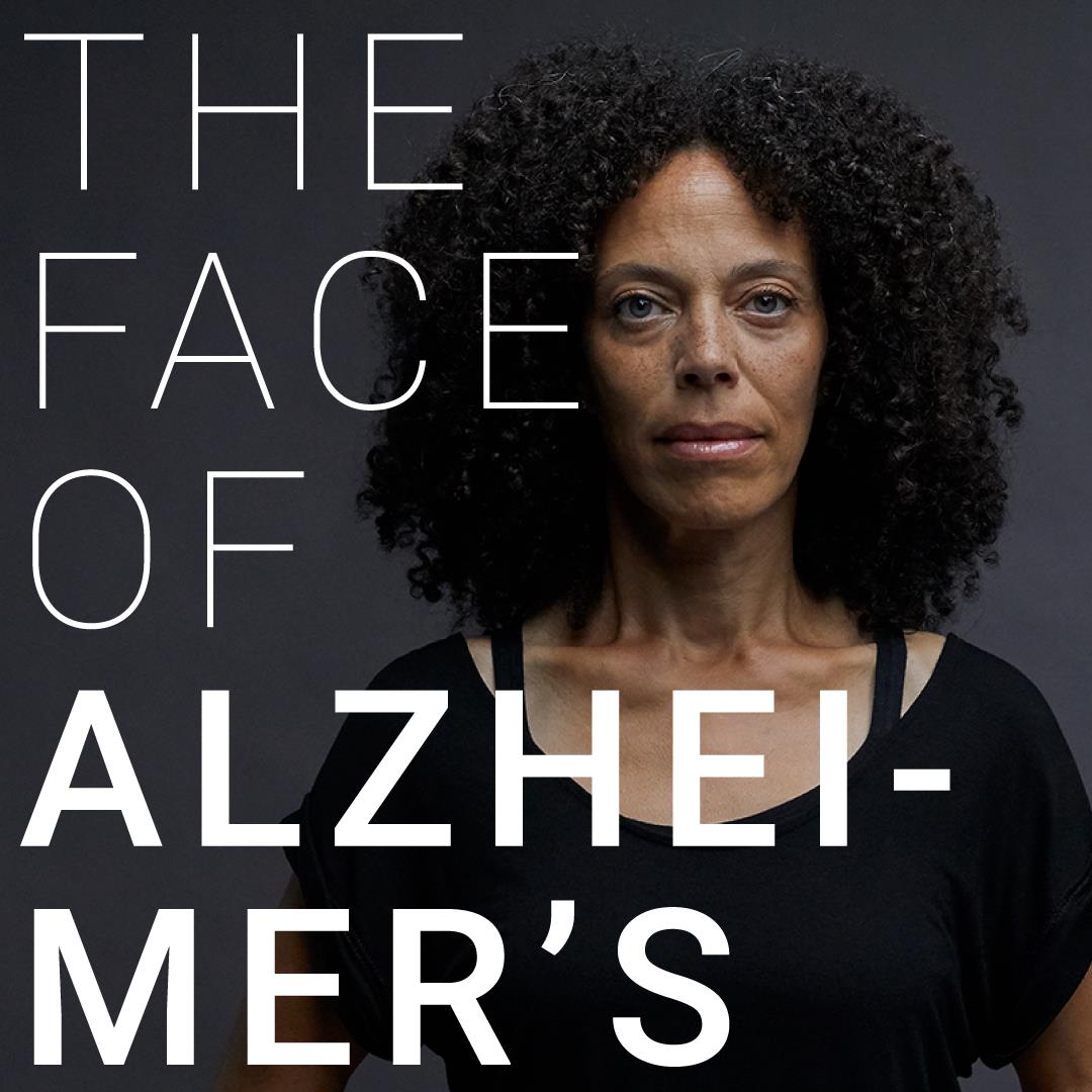 The Face of Alzheimer's